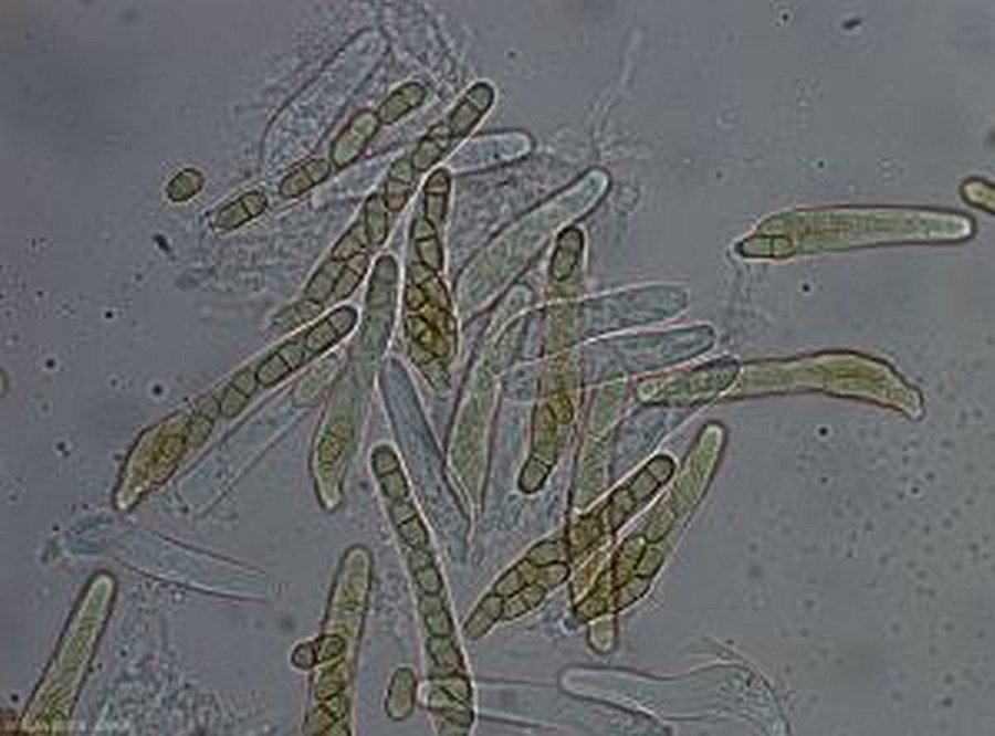 Fot.3 Worki z dojrzałymi zarodnikami workowymi [żródło: http://ephytia.inra.fr/fr/IC/32973/Pommier-Tavelure2-Bellanger]